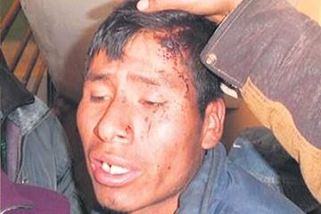Denuncian quema de casas en El Alto por loteadores