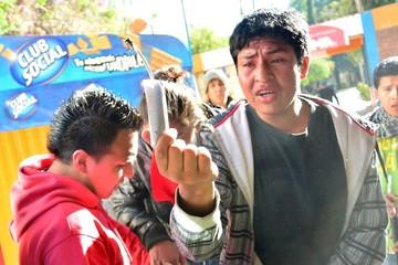 Estudiante universitario de San Simón se debate entre la vida y la muerte