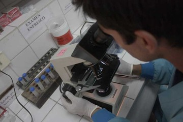 VIH: Nuevo caso en menor por transmisión vertical
