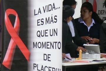 VIH es la infección sexual con menos casos positivos