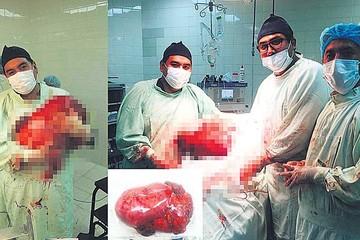 Gastro: Galenos extirpan tumor de 13 kilos y medio