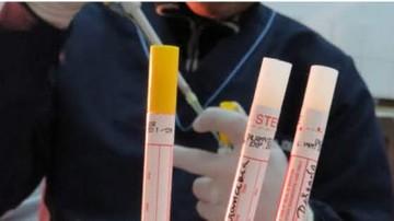Confirman nuevo caso de VIH en Sucre