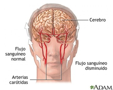 Accidente isquémico transitorio (AIT)