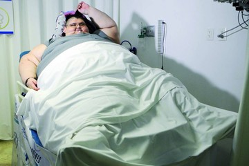 El hombre más obeso del mundo inicia tratamiento