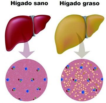 El hígado graso deriva en varias enfermedades