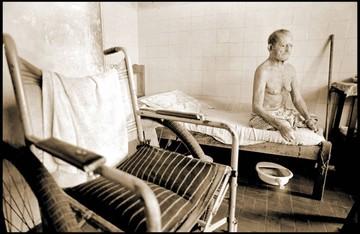 Lepra, enfermedad que se resiste a desaparecer