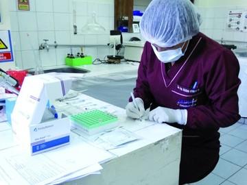 Asignan Bs 276 mil para atender alerta naranja de VIH/sida