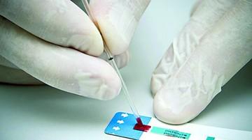 Sucre reporta 17 casos más de VIH/sida