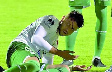 Óscar Ribera fue agredido antes del encuentro