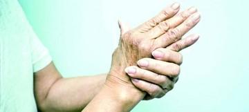 Reumatismo ataca a nueve de cada diez personas