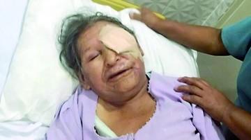 Detienen a agresor de anciana en barrio cruceño