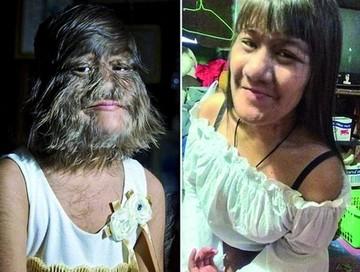 La mujer más peluda del mundo se afeita por amor
