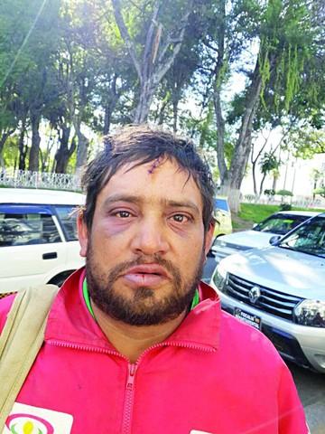 Denuncian ataque brutal contra lavador de autos