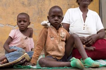 Enock, una víctima de la tuberculosis