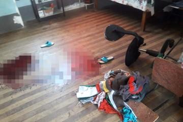 Una mujer lucha por su vida tras ser agredida en la cabeza por su ex pareja