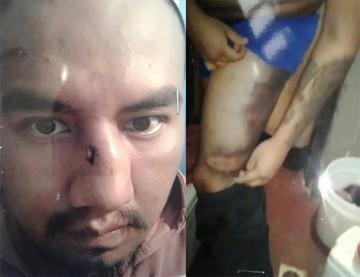 Denuncian que Juan Pari recibió una brutal golpiza en la cárcel