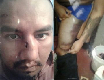 Policía es derivado a proceso sumario por golpiza a Juan Pari