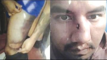 Juan Pari denuncia que fue torturado por dos policías en Chonchocoro
