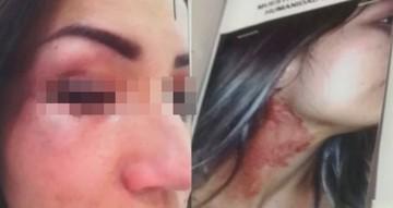 Diputado del MAS es denunciado por agresiones a su ex pareja
