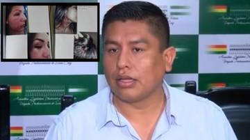 Diputado acusado de golpear a su ex pareja asegura que es inocente