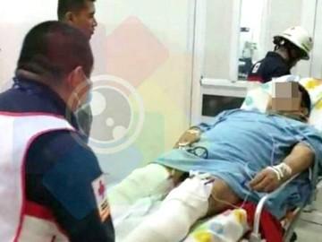 Periodista padece tras ataque a disparos