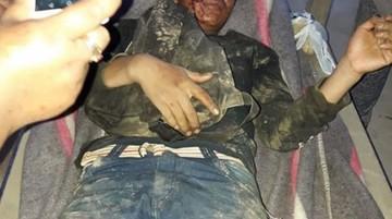 Cocaleros denuncian nuevo enfrentamiento con efectivos de la FTC en Los Yungas