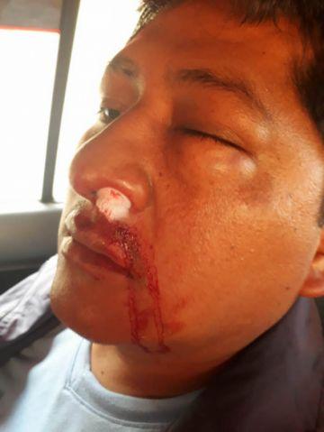 Cocalero de Yungas acusa a oficialistas de golpearlo