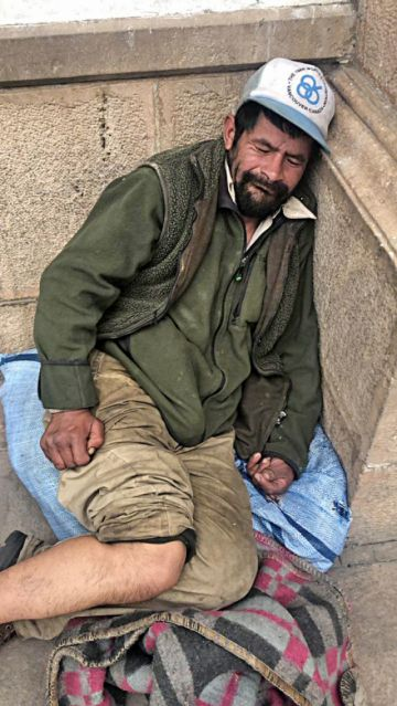 """""""Cachito"""" fue internado por una fractura en tobillo"""