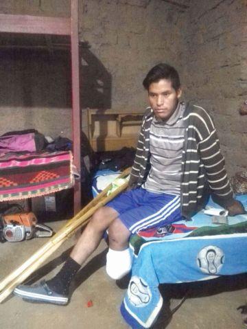 Elio, de 19 años, perdió  un pie, no sus sueños