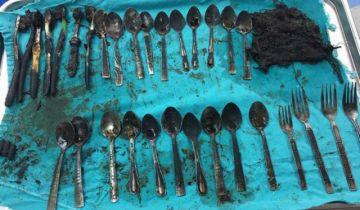 Encuentran una veintena de cucharas en el estómago de un joven