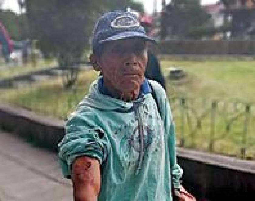 Medio centenar de personas son mordidas cada semana en Sucre