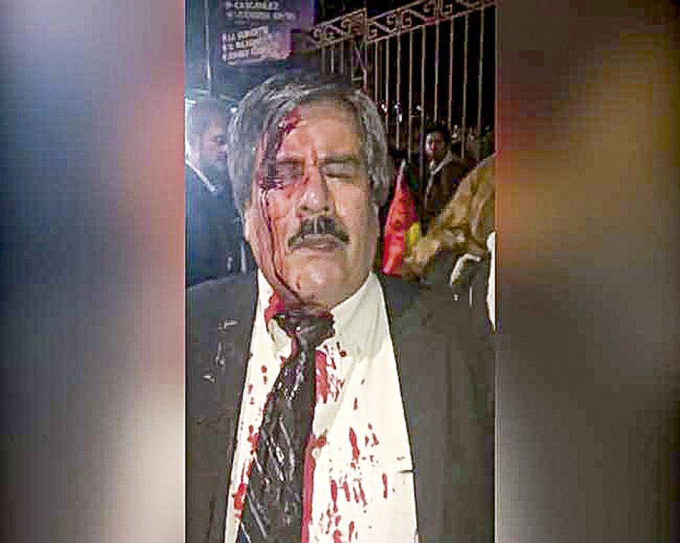 Albarracín  es herido en  manifestación